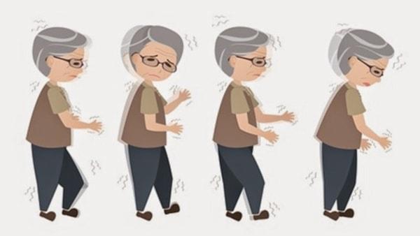 Cách phòng ngừa bệnh Parkinson ở người cao tuổi 2