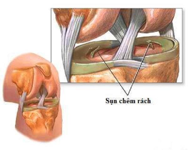 Các nguyên nhân gây bệnh viêm khớp gối thường gặp 3