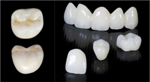 hướng dẫn lựa chọn răng sứ sao cho phù hợp