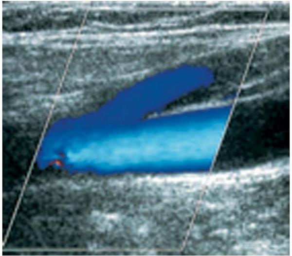 Các dấu hiệu của bệnh giãn tĩnh mạch 2